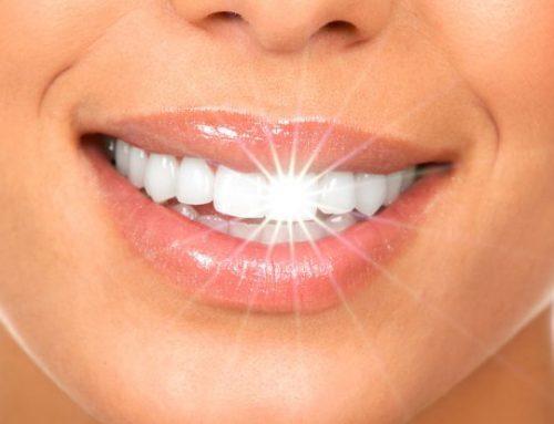 8 cosas que no sabías sobre el blanqueamiento dental