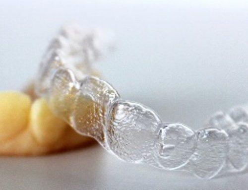 sMySecret revoluciona el concepto de ortodoncia invisible