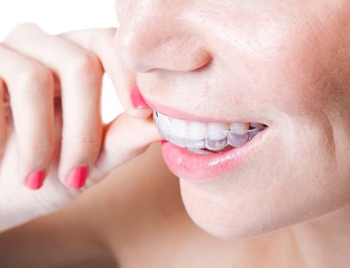 Maloclusión dental: causas, consecuencias y tratamiento