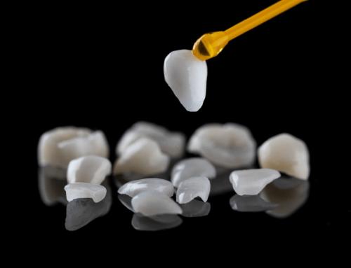Aprende a cuidar tus carillas dentales